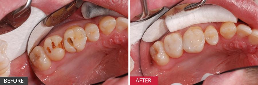 Răng hàm bị lung lay làm sao để chắc lại không bị nhổ-anh1