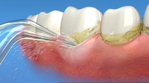 Răng sâu bị lung lay nặng có nhổ không? 2