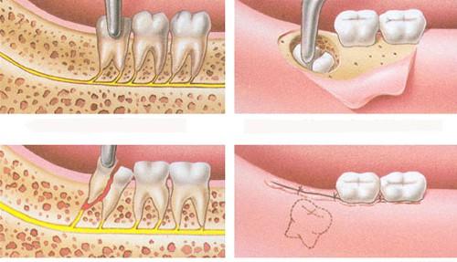 Nhổ Răng Số 8 hàm dưới có nguy hiểm không? Có biến chứng không? 1