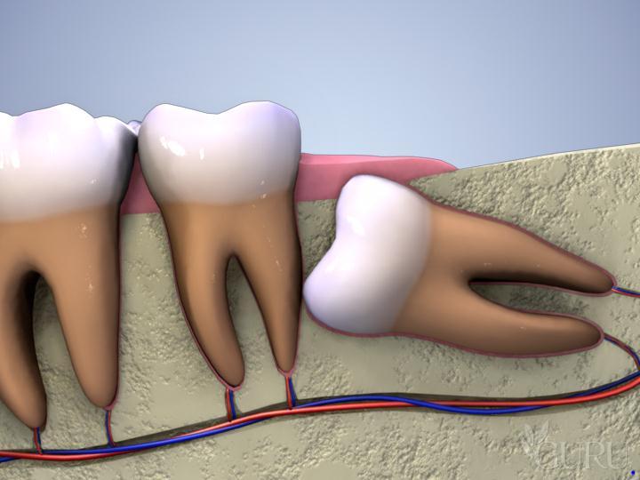 Giá nhổ răng số 8 bao nhiêu tiền?