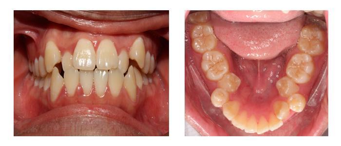 """Giải đáp thắc mắc """"Có nên nhổ răng thừa không?"""""""