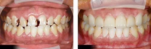 Nhổ Răng Cửa hàm trên có nguy hiểm không? Cần lưu ý gì? 1