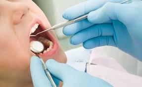 Nhổ răng hàm trên có ảnh hưởng gì & nguy hiểm không?【BS tư vấn】1