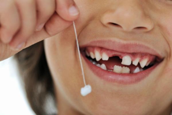 Địa chỉ nhổ răng sữa cho trẻ em tốt nhất