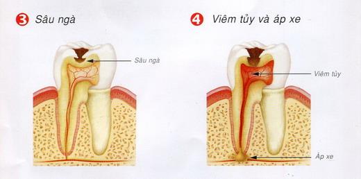 Cách khắc phục Răng Sâu bị Vỡ lớn & Chảy Máu hiệu quả triệt để 2