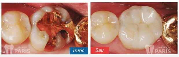 Điều trị răng hàm sâu nặng bằng cách nào tốt nhất? 4