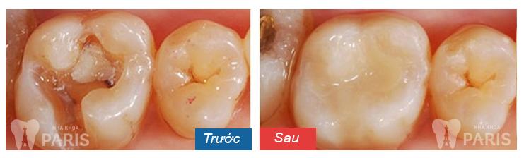 Điều trị răng hàm sâu nặng bằng cách nào tốt nhất? 1