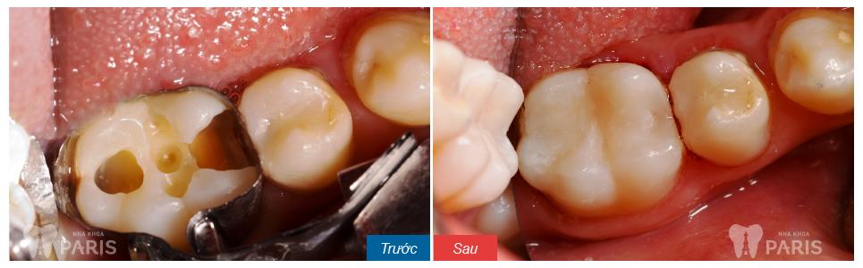 Điều trị răng hàm sâu nặng bằng cách hàn trám