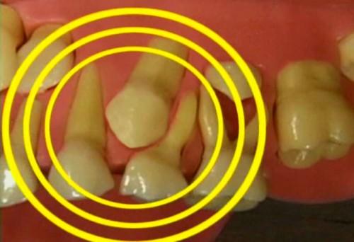 Nhổ răng sữa sớm có ảnh hưởng tới mọc răng vĩnh viễn không? 2