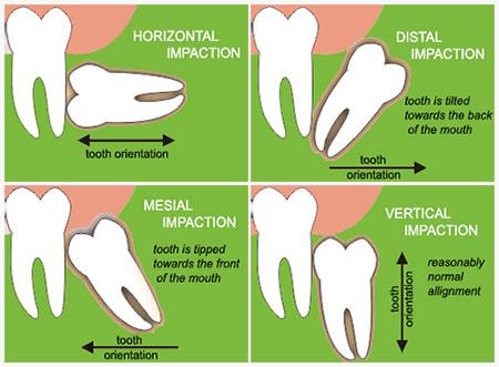 Phải làm sao sau khi nhổ răng số 8 bị sưng?
