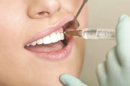 Nhổ răng xong nên làm gì để lành thương nhanh nhất?