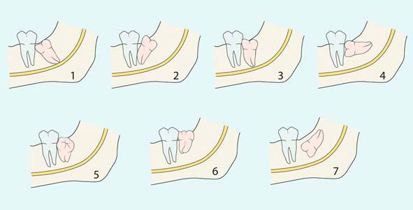 Những chú ý trước và sau khi nhổ răng khôn bạn cần biết 1