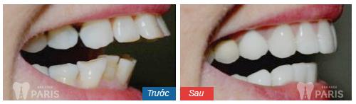 Cách chỉnh răng vẩu không cần nhổ tại nha khoa Paris