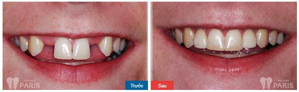 Có nên trồng răng ngay sau khi nhổ 2 răng cửa không?