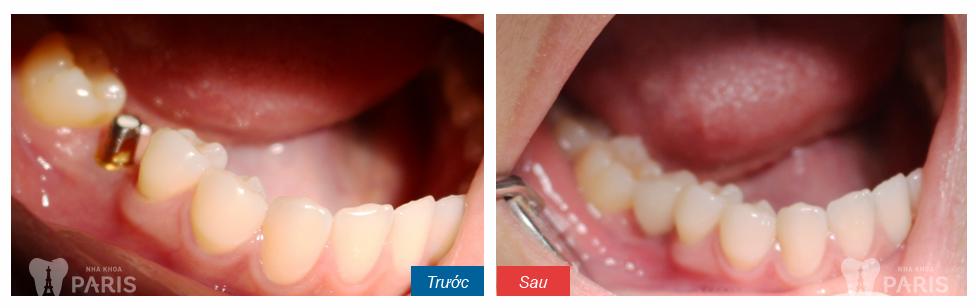 Giải đáp chính xác có nên nhổ răng hàm sâu hay không?