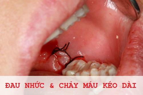 TOP 4 dấu hiệu cảnh báo tình trạng nhổ răng bị nhiễm trùng 1