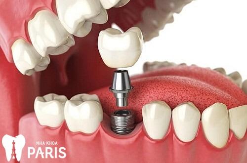 [Bạn hỏi - Bác sĩ trả lời] - Nhổ răng hàm có bị móm không? 2