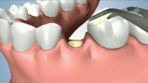 Nhổ răng hàm như thế nào đảm bảo an toàn cao nhất?