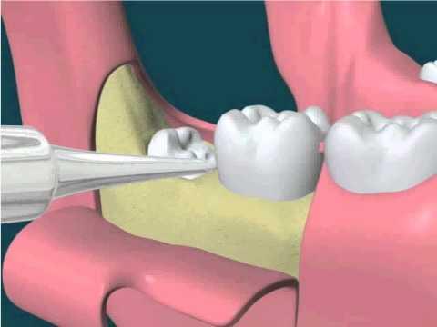 Nhổ răng lúc nào là tốt nhất và ít đau nhất thưa bác sỹ?