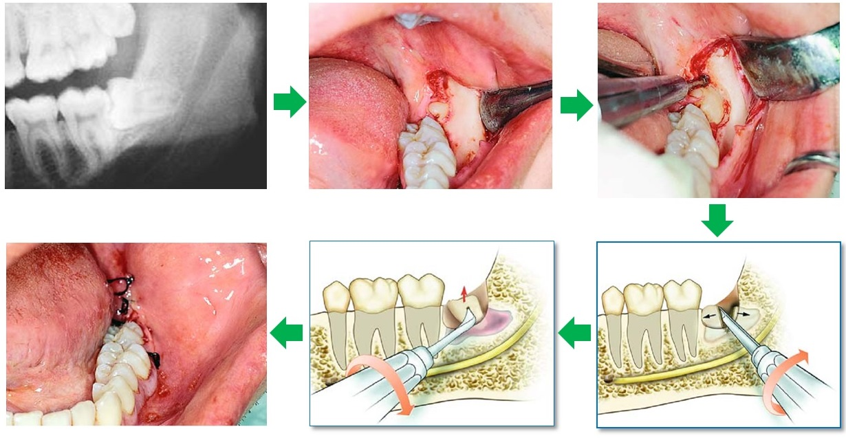 Nhổ răng khôn có sao không và có biến chứng gì không?