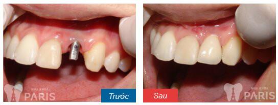 Tư vấn nhổ răng xong trồng răng giả bằng cách nào tốt nhất? 1