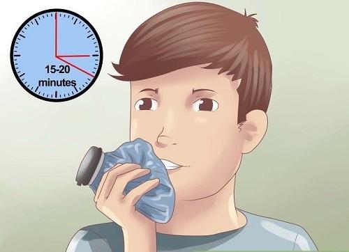 NEW - Cách cầm máu khi nhổ răng tại nhà HIỆU QUẢ ngay lập tức 1
