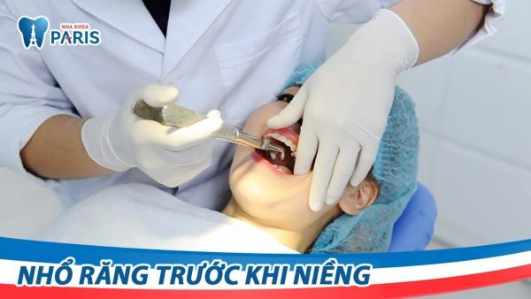 Tác hại của nhổ răng số 4 là gì?