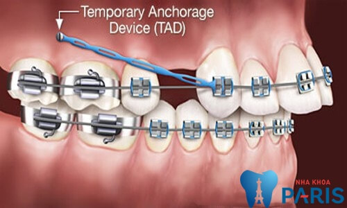 Vì sao phải nhổ răng để niềng răng?