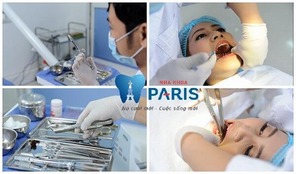 Nhức răng khôn – Nguyên nhân và cách điều trị triệt để nhất 3