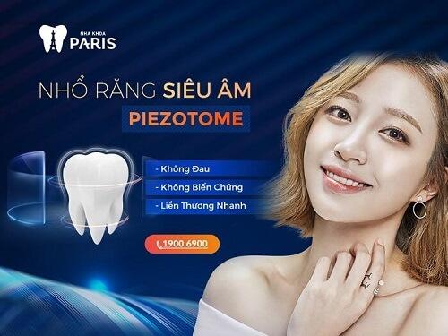 Giá nhổ răng khôn hết bao nhiêu tiền không thay đổi với Piezotome tại nha khoa Paris