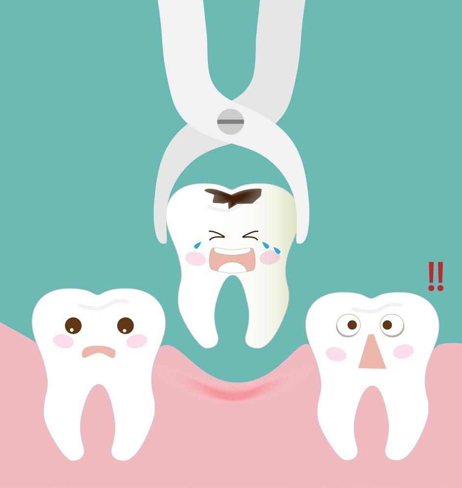 Nhổ răng hàm bị lung lay nặng và không thể bảo tồn được nữa