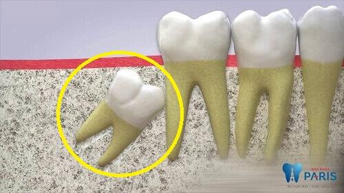 [Giải đáp thắc mắc] Tại sao phải nhổ răng khôn để niềng răng? 1