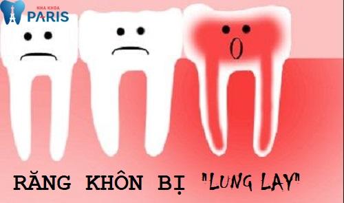 Răng khôn bị lung lay - Nguyên nhân do đâu?