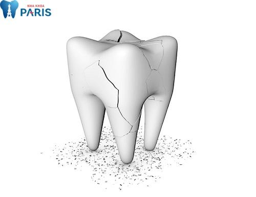Không chỉ lung lay, răng khôn có thể bị nứt vỡ khi va đập mạnh