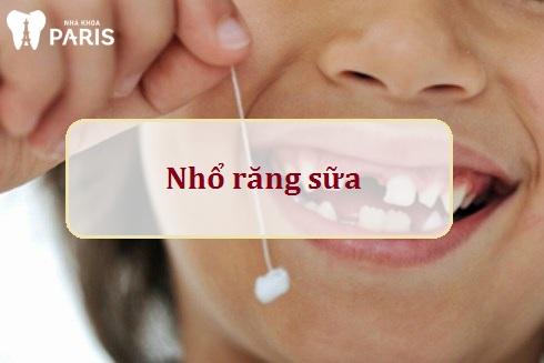 Nhổ răng sữa khi răng vĩnh viễn mọc sớm