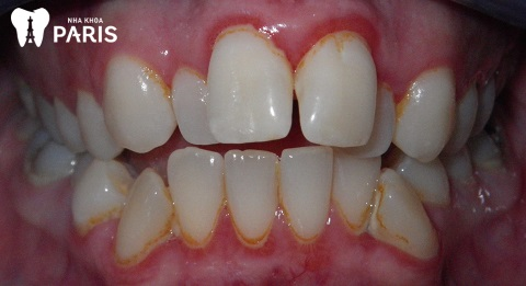 Bé mọc răng sữa bị lệch có thể là nguyên nhân răng vĩnh viễn mọc lệch lạc