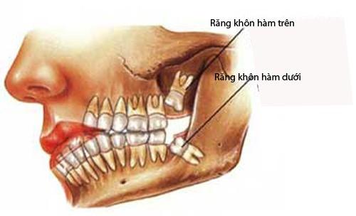 Độ tuổi mọc răng khôn là khi nào