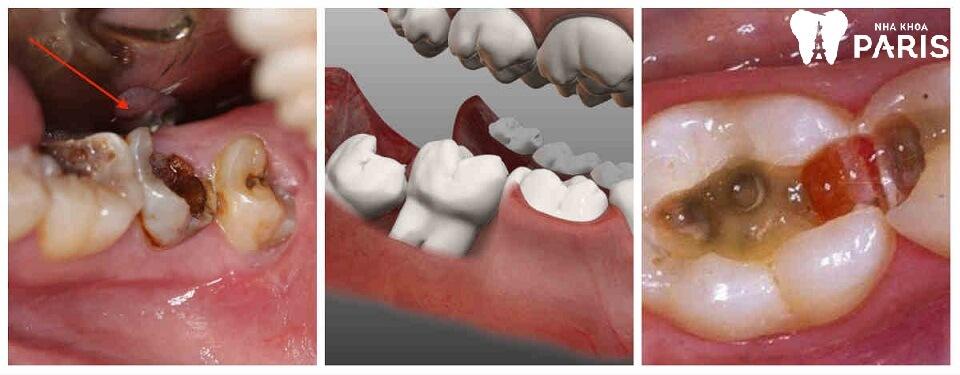 Cách nhổ răng hàm Nhẹ Nhàng Không Đau vết thương mau lành - ảnh 2