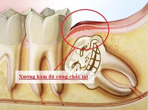 Nhức răng khôn – Nguyên nhân và cách điều trị triệt để nhất 1