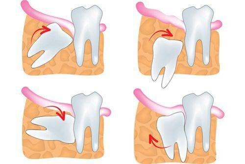 Nhức răng khôn – Nguyên nhân và cách điều trị triệt để nhất 2