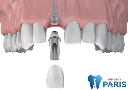 Nhổ răng cửa có đau và nguy hiểm không? BS nha khoa tư vấn 3