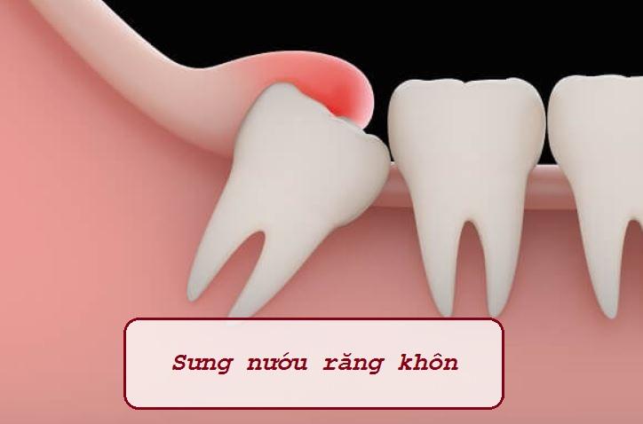 Sưng nướu răng khôn do răng đang trồi lên khỏi nướu