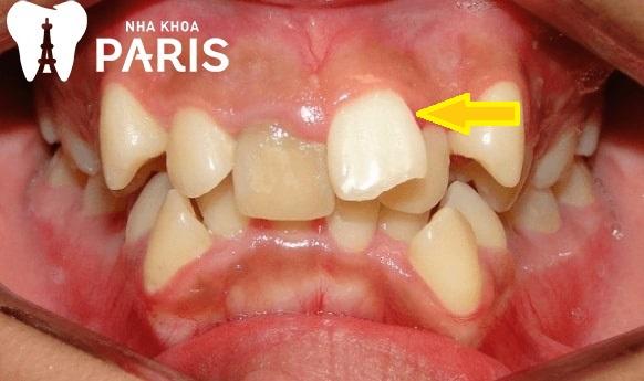 NHổ răng lồi xỉ, răng thừa là cần thiết