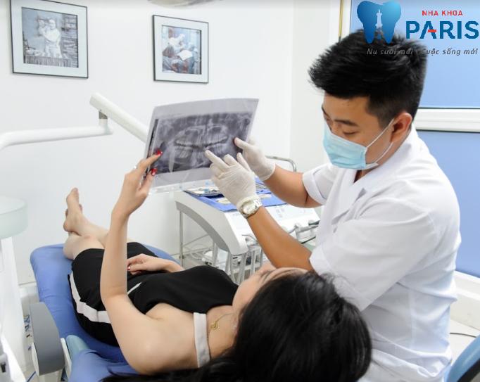 giá nhổ răng hàm