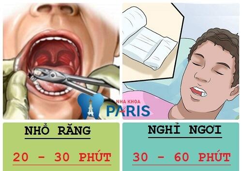 Nhổ răng khôn mất bao lâu thì xong & quy trình thực hiện thế nào? 1
