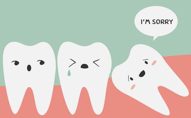 Nhổ răng khôn có đau không? Nhổ răng khôn bao lâu thì lành? 1