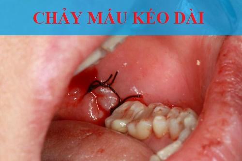 Biến chứng nhổ răng khôn bị chảy máu kéo dài