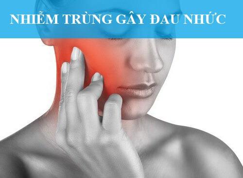 Biến chứng sau khi nhổ răng khôn hay gặp là đau nhức
