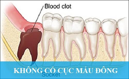 Biến chứng nhổ răng khôn là viêm xoang răng rất nguy hiểm