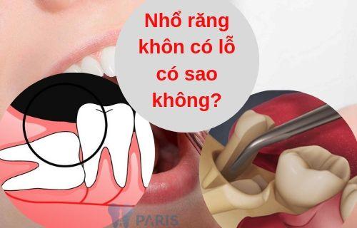 Nhổ răng khôn có lỗ có sao không?